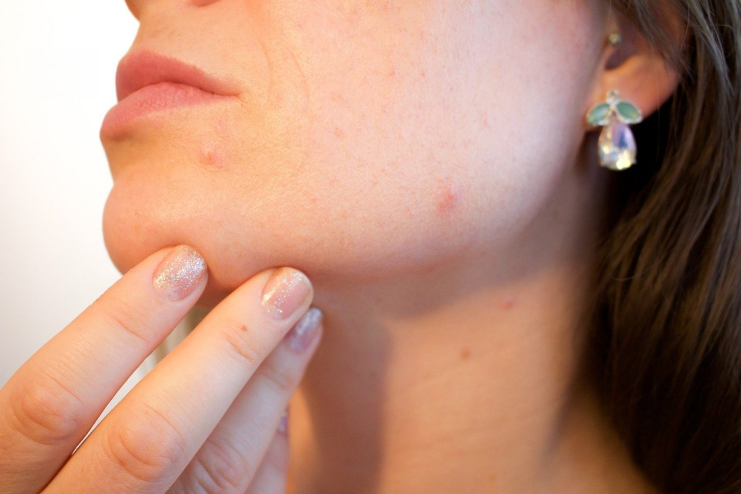 How to know if you have skin acne