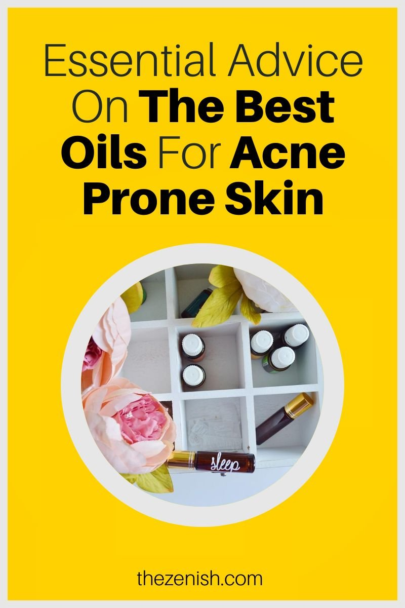 best oils for acne prone skin