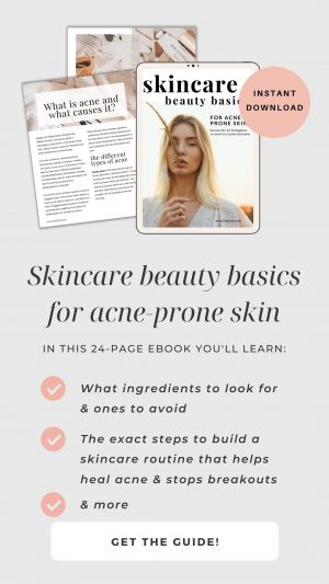 skincare basics for acne-prone skin